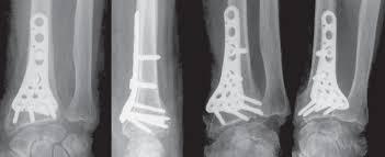 Ostéosynthèse